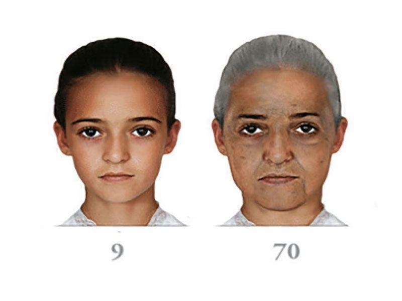 Age 9 to 70 UV exposure damage