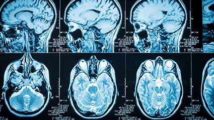 Obesity and Brain Aging