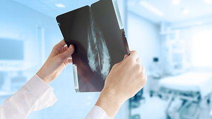 El cáncer de mama y el peso