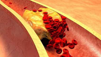 Cholesterol Dangers in Young Adulthood