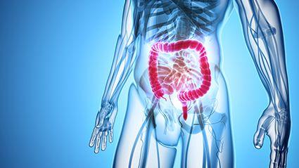 La comida, la inflamación y el riesgo de cáncer