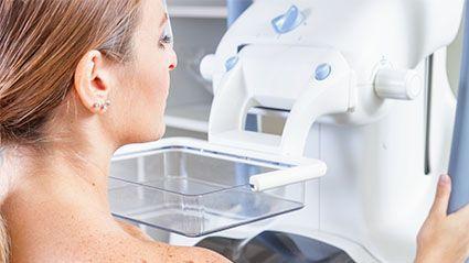 Mammography at 30?