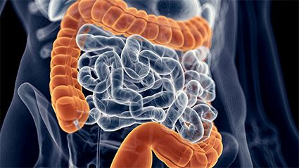 Childhood Obesity and Colon Cancer